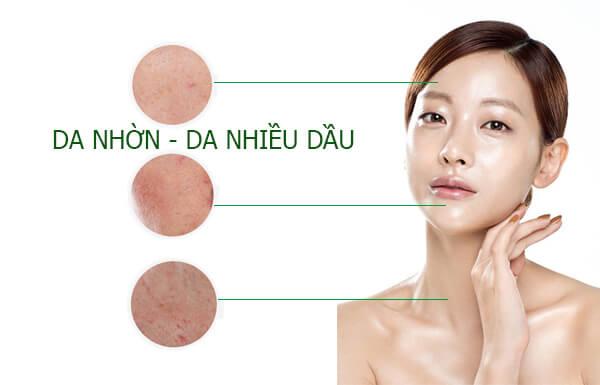Nguyên nhân gây mụn cho làn da