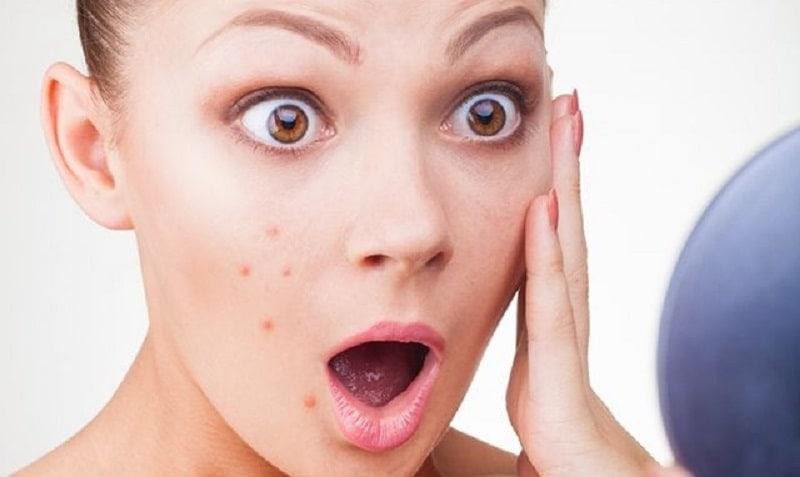 Những lợi ích không ngờ của kem chống nắng cho da mụn ít người biết