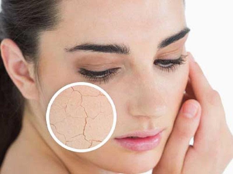 Da khô có những đặc điểm cơ bản nào?