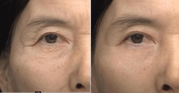 """Đọc bảng thành phần của Serum 90s Wrinkle Removal Treatment, tổ hợp các thành phần """"vàng"""" chống lão hóa 2"""