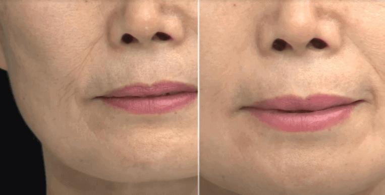 Nếp nhăn ở khóe mắt và rãnh miệng giảm vĩnh viễn đến 30% sau khi sử dụng 1 tháng